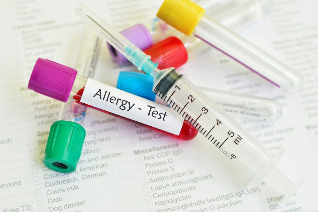 Blood sample for allergy testing