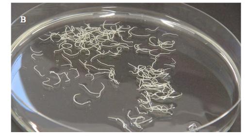 Pesce crudo: il rischio larve di Anisakis. Cosa fare per neutralizzare il parassita nascosto e mangiare tranquilli