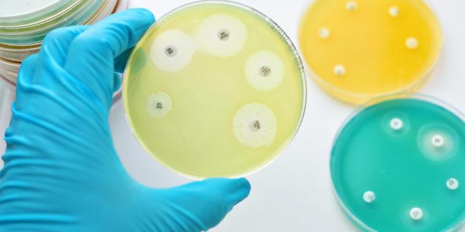 resistenza antibiotici piastre laboratorio batteri AdobeStock_105452319