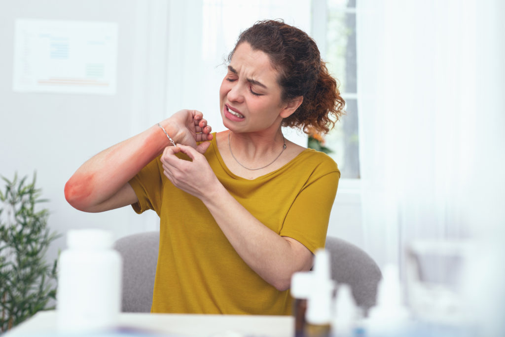 Young sore looking woman treating her inflamed arm