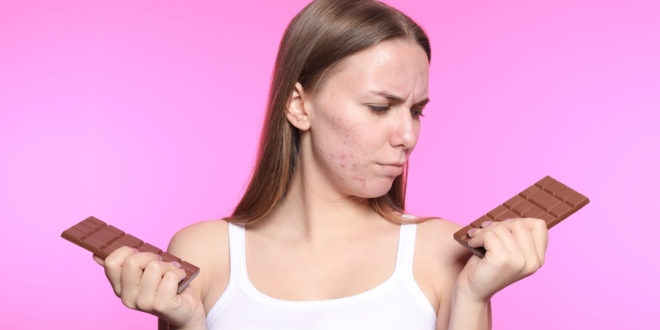 Young woman with acne problem holding chocolate bars on color background. Skin allergy